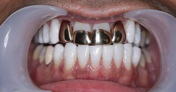 Porcelain veneers before example