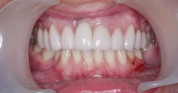 Porcelain veneers after example