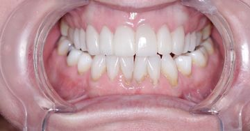 Porcelain veneers after example 2