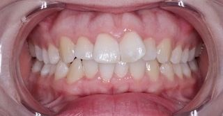 Invisalign before treatment