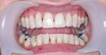 After invisalign whitening and contouring 3