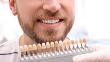 Teeth whitening Blackheath