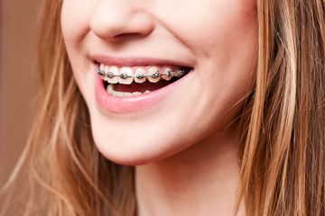 Childrens private Braces Blackheath and Rowley Regis