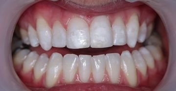 teeth contouring after example