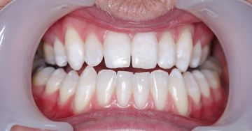 teeth contouring before example 2