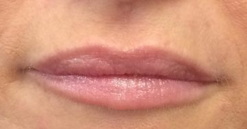 Lip filler after example 2