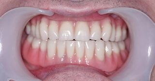 Dental Implants After patient results Rowley Regis