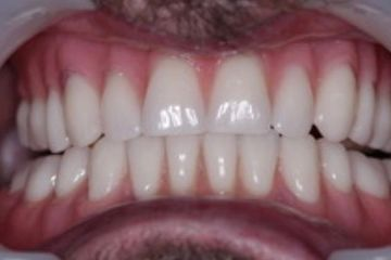 Dental Implants after photography Blackheath